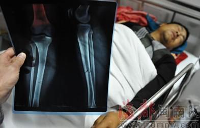 工人魏衡金双腿骨折
