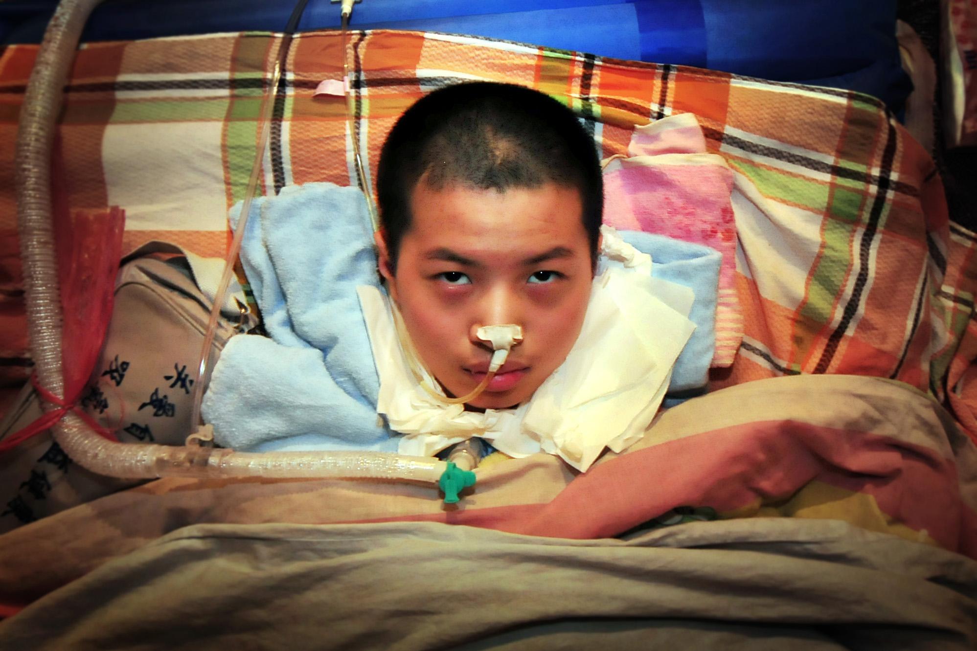 14岁儿子身患脊索瘤