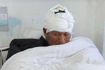 陈先生的头被烧伤,缠着纱布