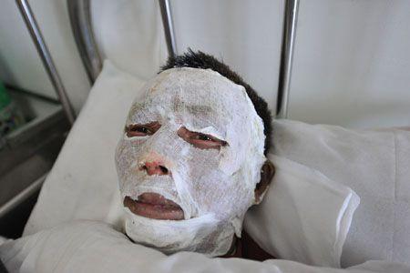 王先生整张脸都上了药,上面还敷了一层纱布