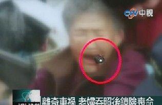 老妇出车祸竟差点吞下后照镜,急救后无大碍。