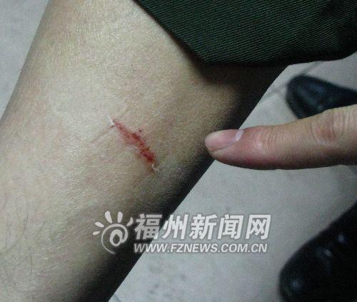 运管人员被打伤