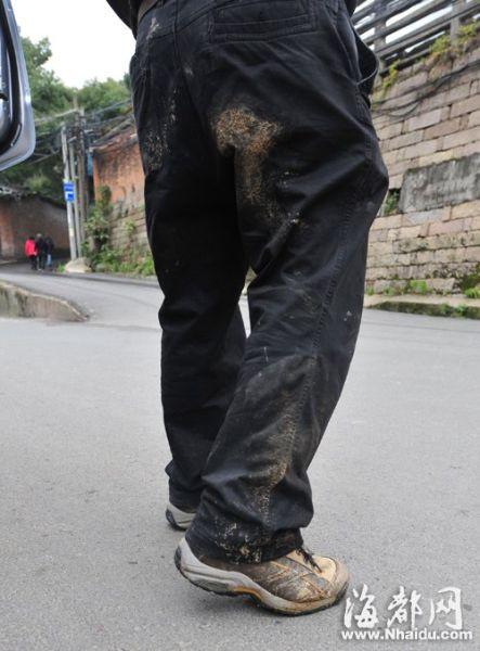 记者被偷袭,裤子留下印渍