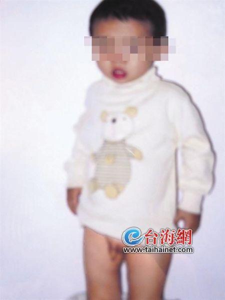 幼儿园两岁小孩尿床 被园长粗暴拽伤生殖器
