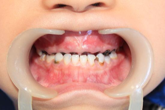 q:为什么要预防蛀牙,蛀牙给儿童带来哪些危害?