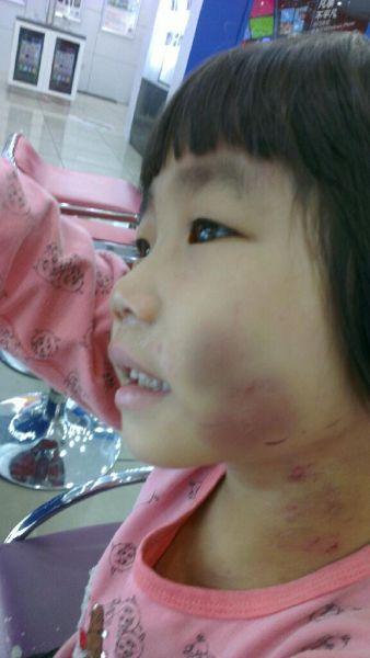 小女孩脸颊肿起,淤青严重