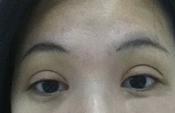 福州美女割双眼皮变鱼眼