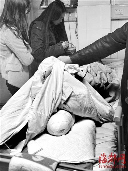 候车学生被碾左脚 家属:公交车两次碾压致断腿