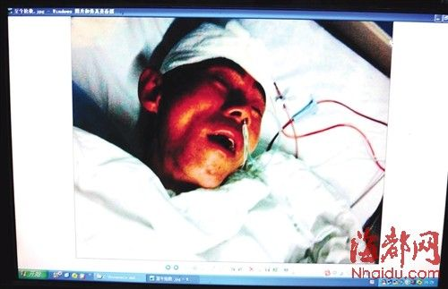 钟先生提供的他父亲送院就医时的照片