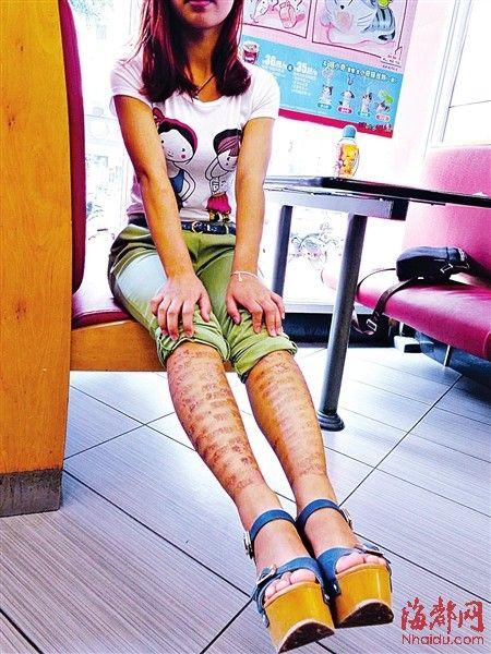 黄小姐的两条小腿上被激光烫出了密密麻麻的伤痕