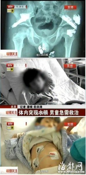 5岁男童体内疑被灌大量汞