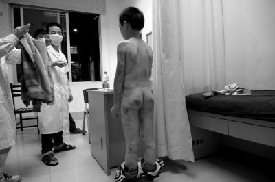被打得遍体鳞伤的彬彬在医院接受检查。