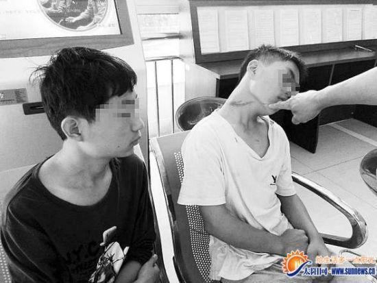 小健和小奔遭人殴打,身上多处挫伤。记者 张尚初 摄