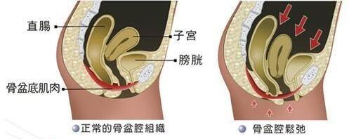 盆腔内部结构图
