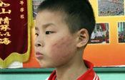厦门6名小学生惹怒老师 被罚互打耳光