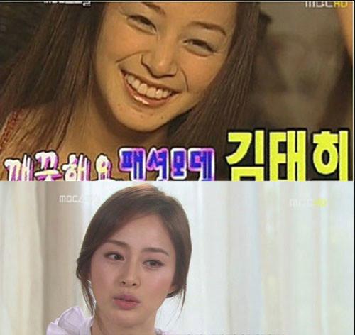 组图:图揭韩国女星坑爹素颜照金泰熙皱纹照