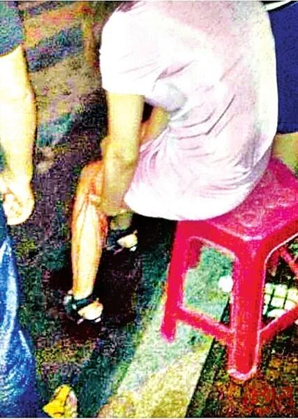 网友称,8月30日晚,一女子腿部被割伤,当场血流不止
