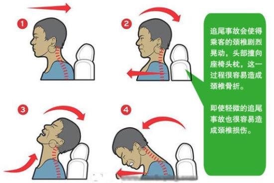 追尾时人体最易受伤的部位是颈椎
