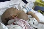初生女婴险遭活埋生还 8个月后再遭遗弃