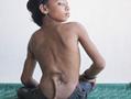 印度少年长尾巴